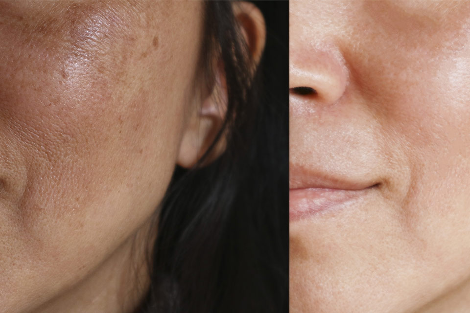 Girl before and after Melasma